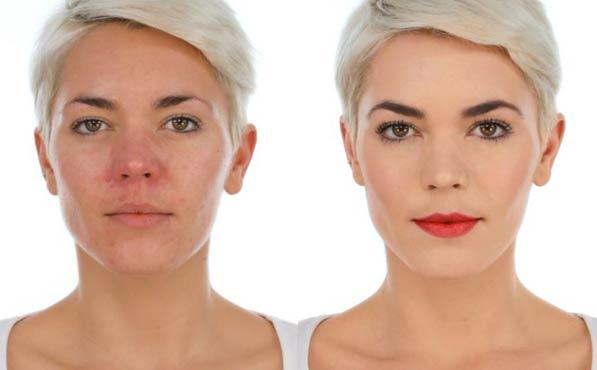 Maquillaje para rosácea ejemplo